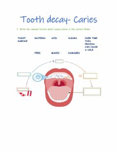 Interactive worksheet Tooth decay